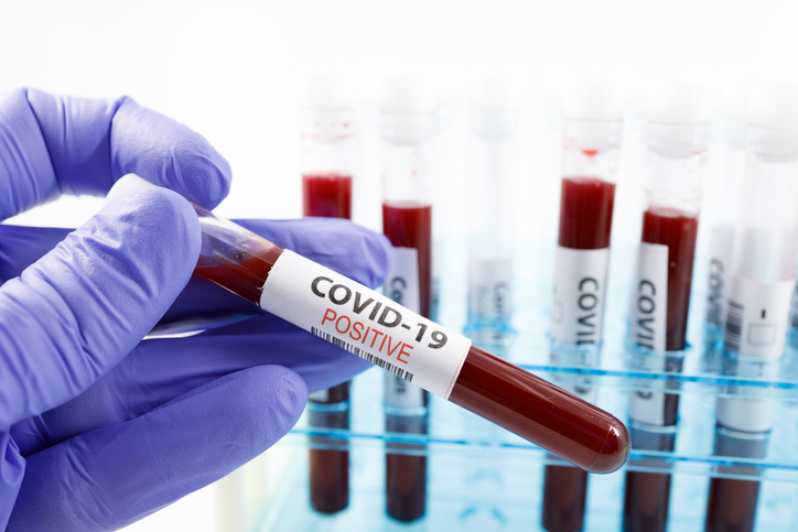 Article image for Collie man tests positive to COVID-19 after hotel quarantine